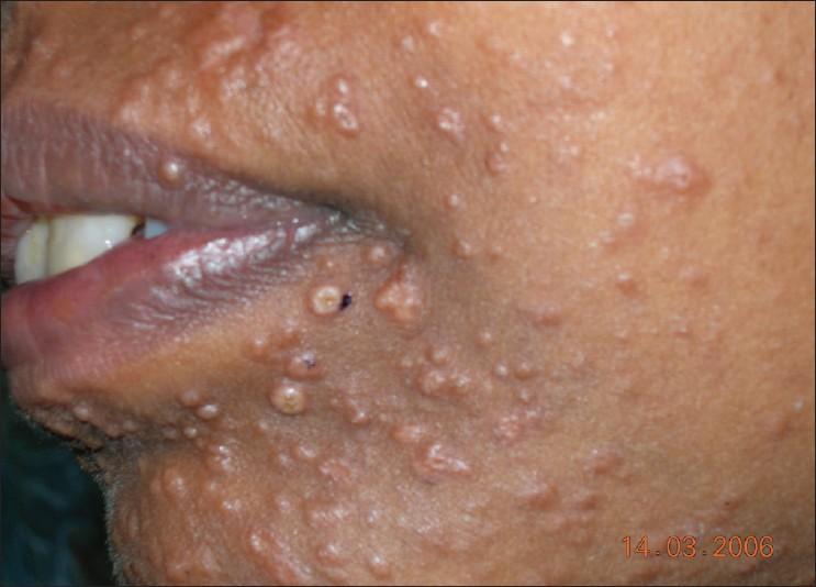 Гистоплазмоз на коже