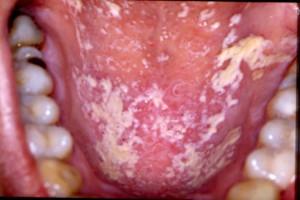 oral candidiasis