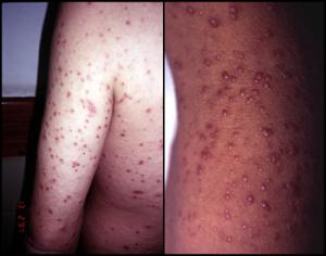 skin lesions histopl